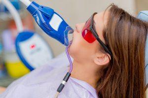 Laser teeth whitenining