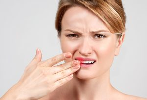 Pain and sensitivity associated with teeth whitening