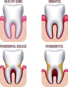 Gum recession and periodontal disease diagram
